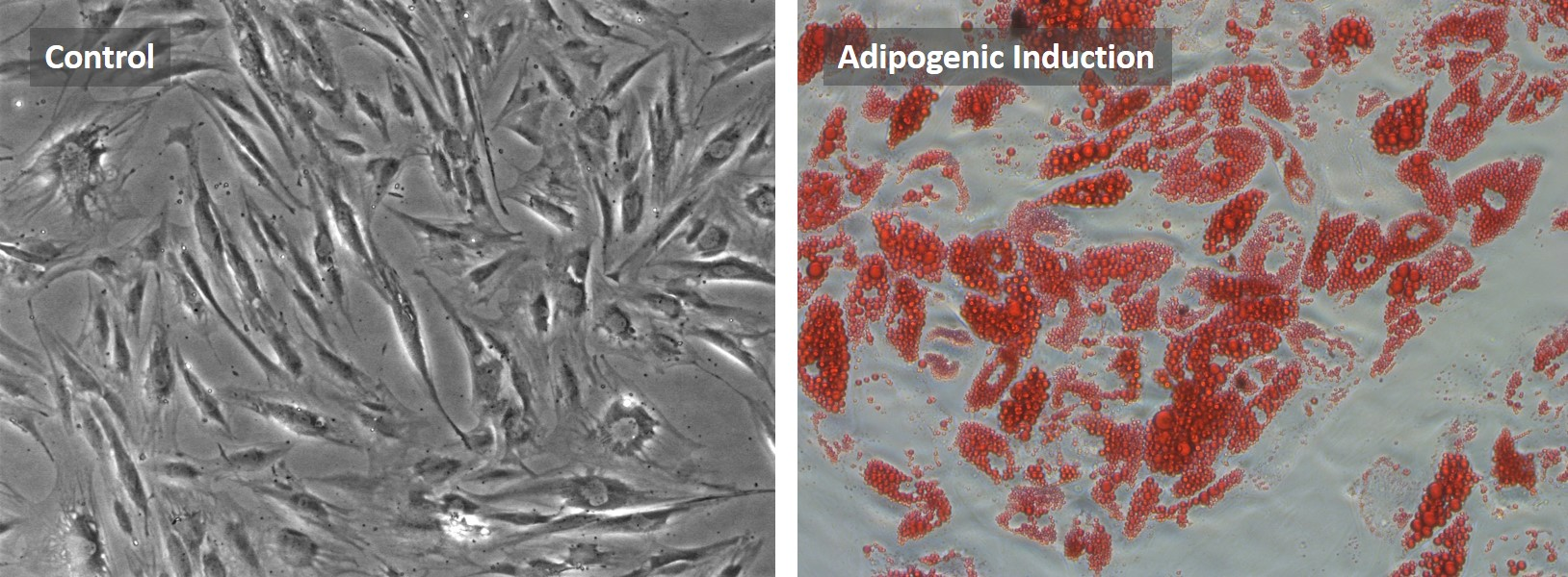 Human ADSC adipocyte differentiation
