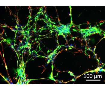 Human Dopaminergic Neurons (iPSC-derived)